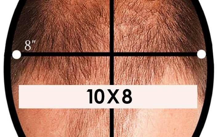 Protez saç boyutları nasıl ölçülür